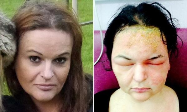 Allergic to hair weave the single mom club allergic reaction to black hair dye pmusecretfo Choice Image